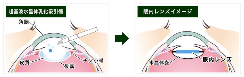【画像】白内障の手術イメージ