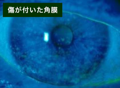 【画像】傷が付いた角膜