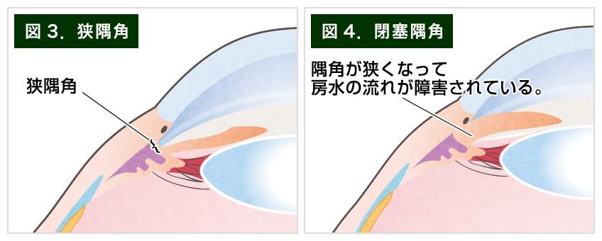 【画像】狭隅角と閉塞隅角の図