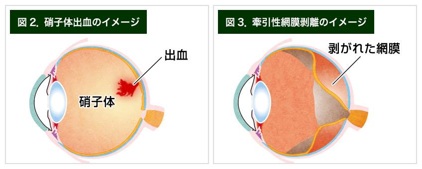 【画像】増殖糖尿病網膜症による症状