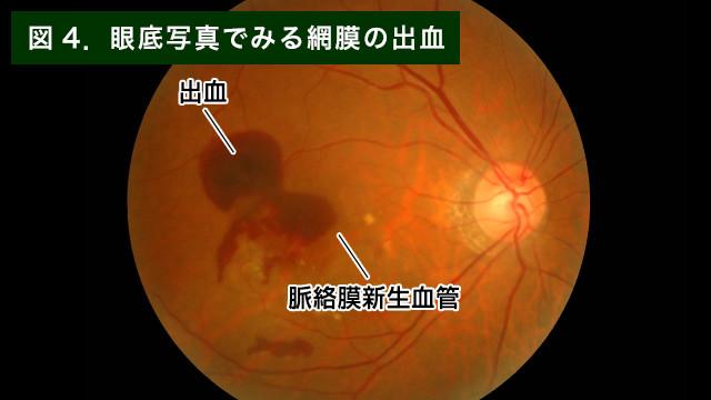 【画像】網膜の出血写真